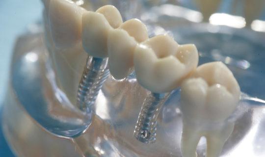 implantat bruecke